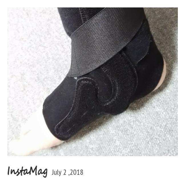 捻挫の治療中の写真